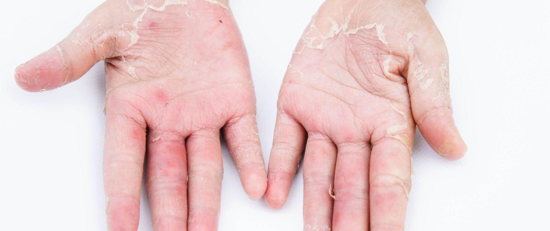 Alerjik Cilt Yangısı Nedir