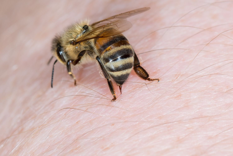 Böcek Sokması Nedir Nasıl Anlaşılır