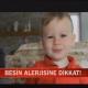 çocuklarda besin alerjisi